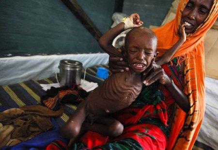 Foto de Dai Kurokawa, de la agencia EFE, que muestra a un niño somalí con desnutrición severa en un campo de refugiados de Kenia.